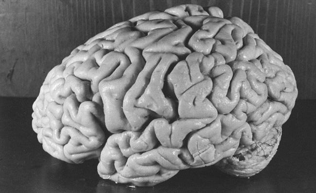 albert einstein beyni